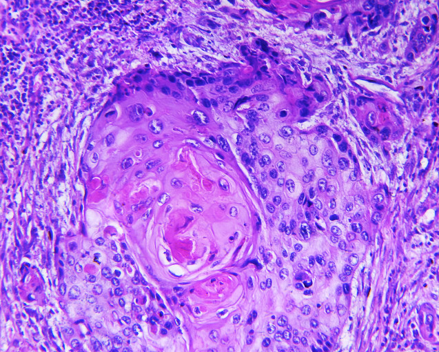 Biopsy: An Important Diagnostic Tool